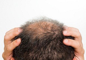 Hair Restoration Surgery with Minimal Cost