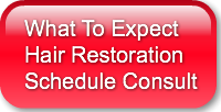 What to Expect Hair Restoration Schedule Consult
