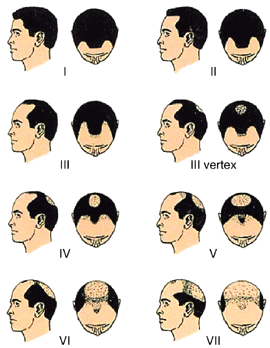 Best hair transplant