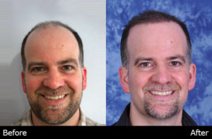 Image of a before & after patient who received a hair transplant