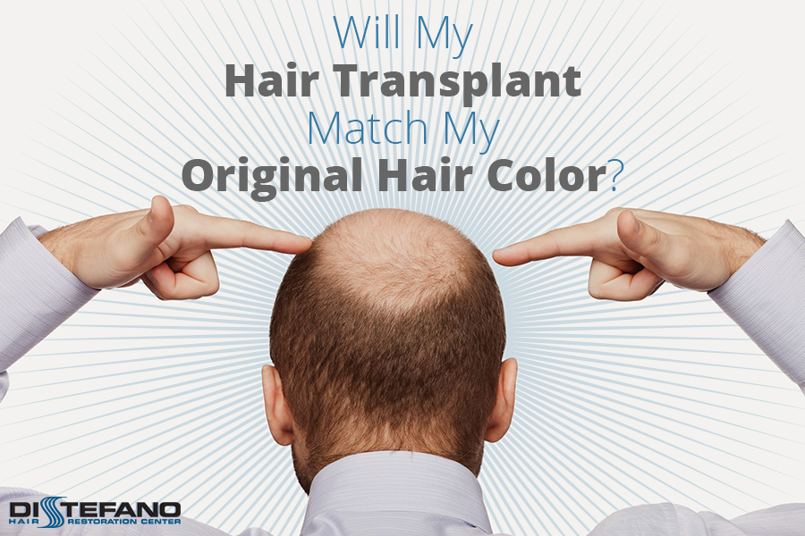A man pointing to his balding head with the words 'How Well Do Hair Transplants Match Original Hair Color'