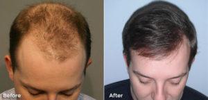 Hair Density Transplantation Techniques