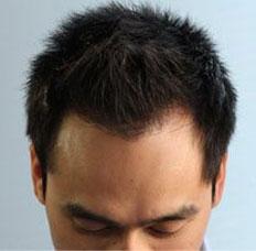 Hair Transplant IGT