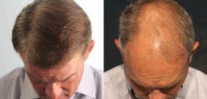 Hair Loss Restoration Center