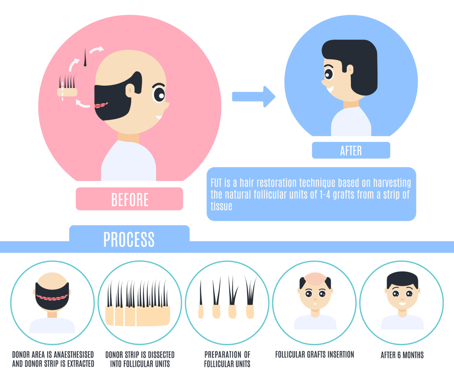 FUT Hair Transplant Diagram